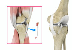 ACL Reconstruction  with Patellar Tendon